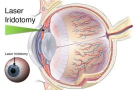 Điều trị Glocom (Cườm nước) bằng Laser không cần phẫu thuật tại BV Tâm Trí Đồng Tháp