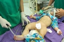 Điều trị lồng ruột ở trẻ em bằng kỹ thuật bơm hơi tại BVĐK Tâm Trí Đồng Tháp, một kỹ thuật ít xâm lấn nhưng hiệu quả rất cao