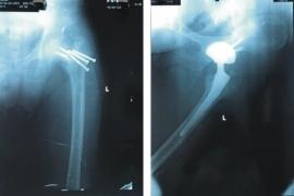 Khớp háng nhân tạo là một cứu cánh giúp nhiều bệnh nhân gãy cổ xương đùi tránh được tàn phế