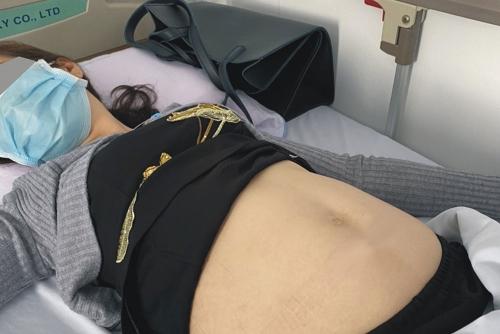 Phẫu thuật lấy khối u khổng lồ trong bụng