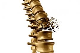Liệu pháp đồng hóa cho bệnh loãng xương (Anabolic Therapy for Osteoporosis)