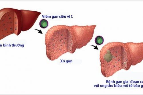 Tầm soát vi rút viêm gan C (Screening for Hepatitis C Virus)