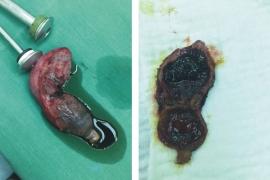 Bệnh viêm túi mật 2 ngăn hiếm gặp
