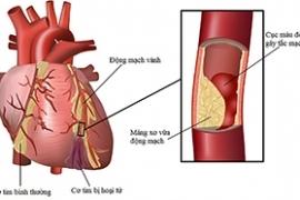 Tầm soát bệnh mạch vành