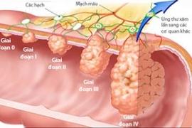 Tầm soát bệnh ung thư đại tràng